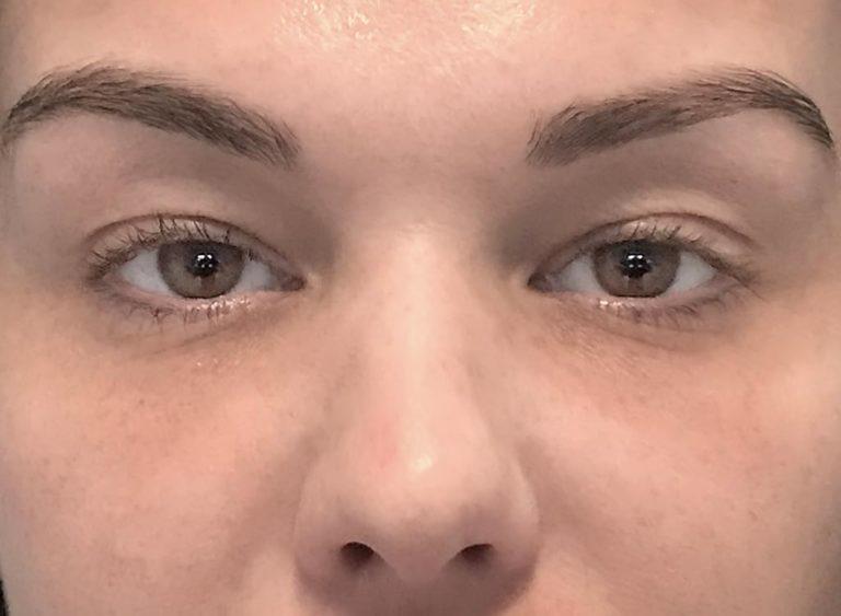 operation av hängande ögonlock