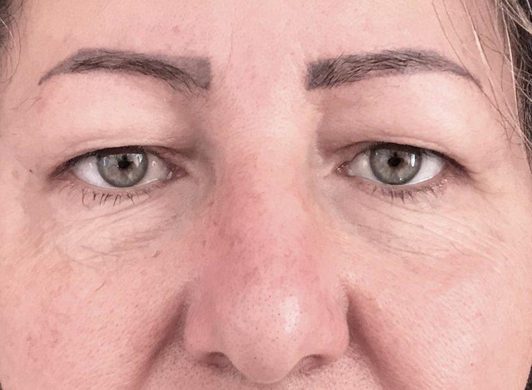 Operera övre ögonlock före efter - före
