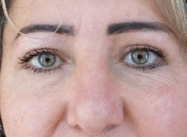 Operera övre ögonlock före efter - efter