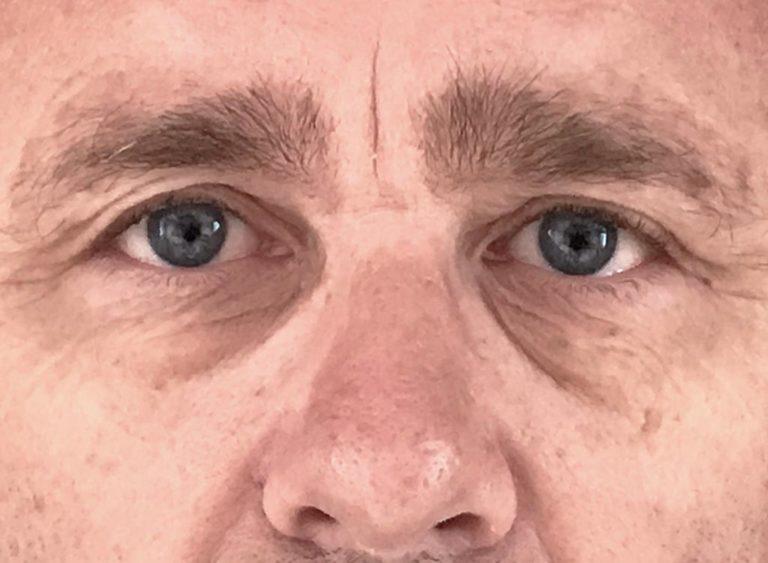 Operera hängande ögonlock man före