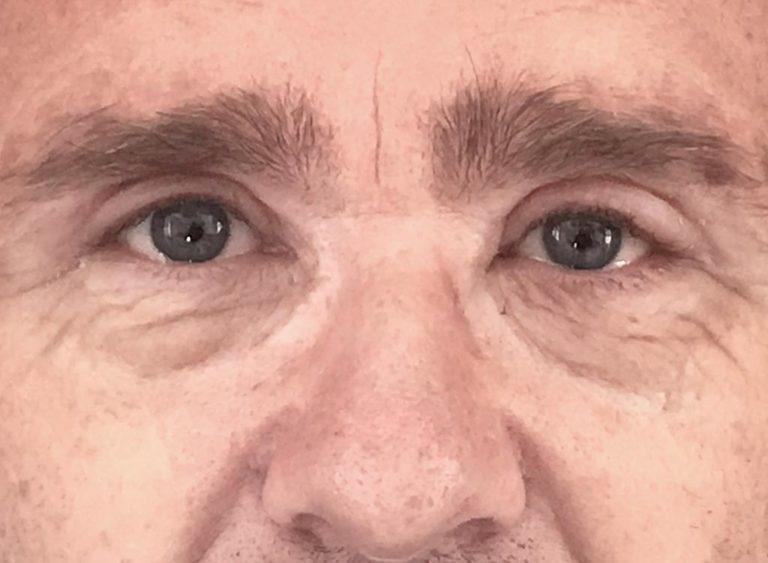 Operera hängande ögonlock man efter