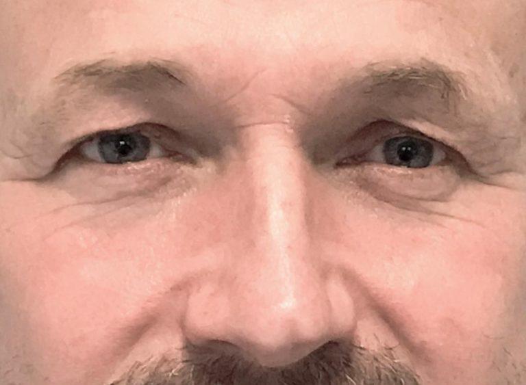 Operation övre ögonlock man före