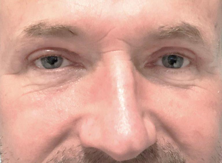 Operation övre ögonlock man efter