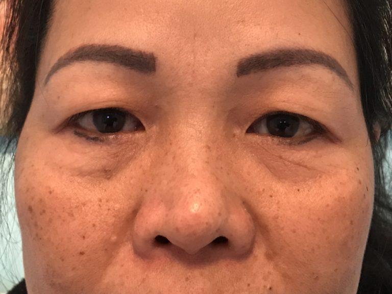 Asiatiska ögon före efter
