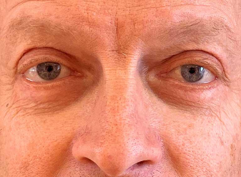 Opereration påsar under ögonen efter