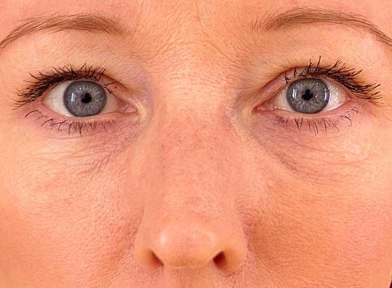 Operera nedre ögonlock efter
