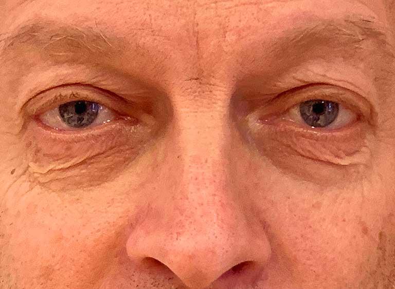 Opereration nedre ögonlock före - Metod Avlägsnande av lös hud