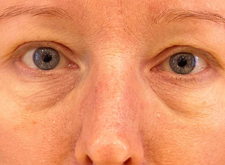 Opereration nedre ögonlock före - Metod Avlägsnande omfördelning av fett