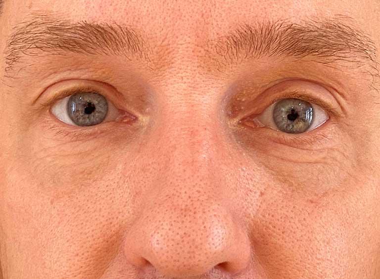 Opereration påsar under ögonen efter - Metod Avlägsnande omfördelning av fett