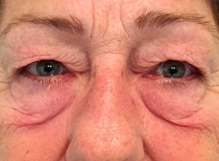 Opereration påsar under ögonen före
