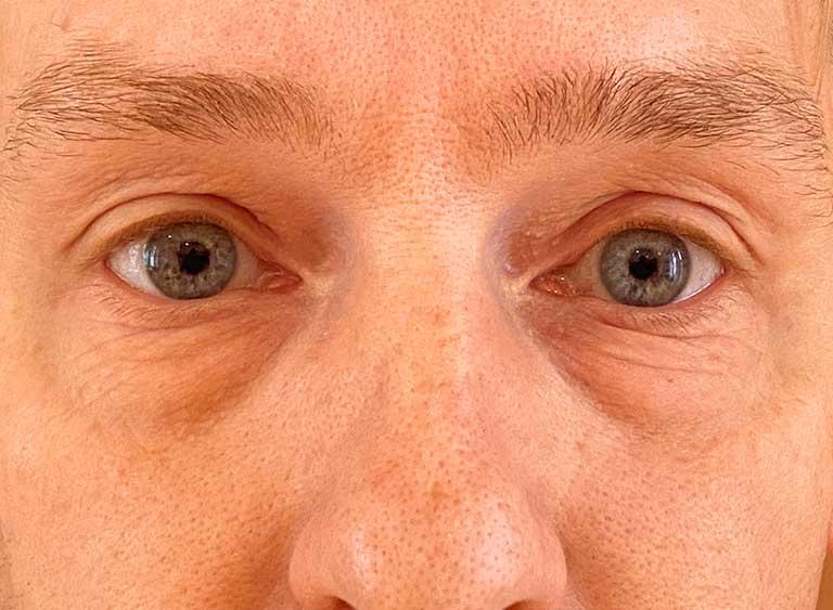 Opereration påsar under ögonen före - Metod Avlägsnande omfördelning av fett
