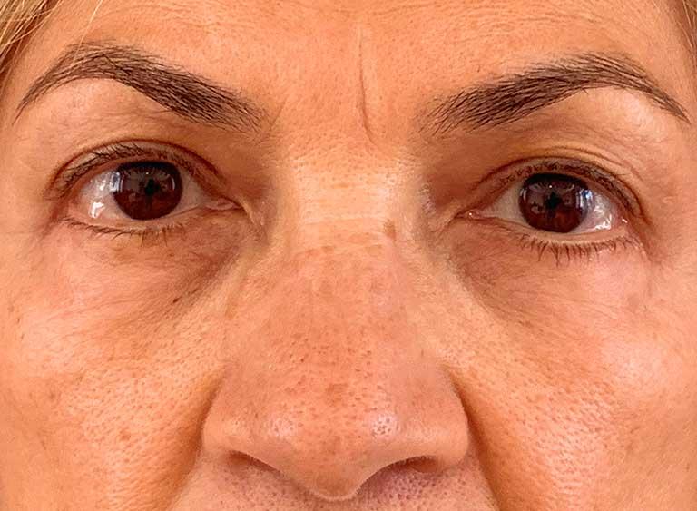 Opereration undre ögonlock efter - Metod Avlägsnande av lös hud