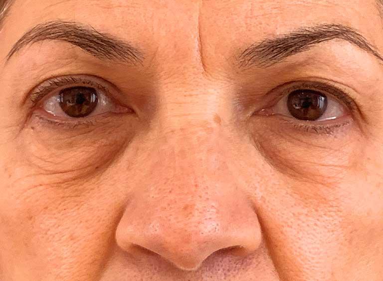 Opereration undre ögonlock före - Metod Avlägsnande av lös hud