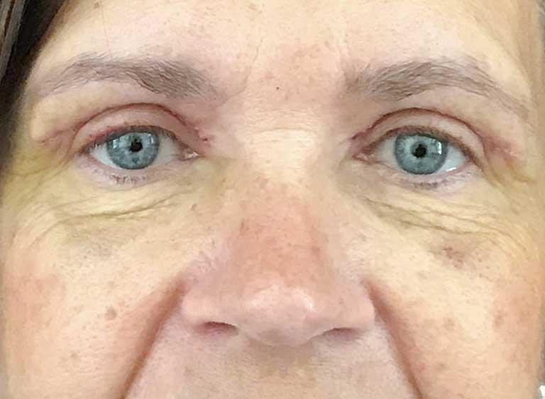 Lyfta ögonlock före efter bilder -efter