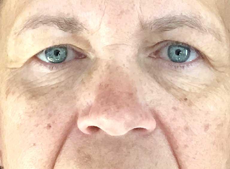 Lyfta ögonlock före efter bilder -före