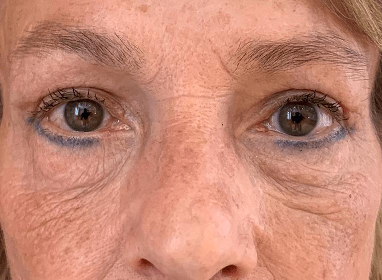 Operation övre och undre ögonlocksplastik före efter bilder - efter