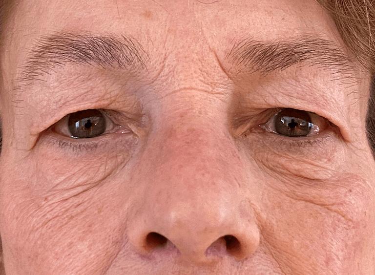 Operation övre och undre ögonlocksplastik före efter bilder - före