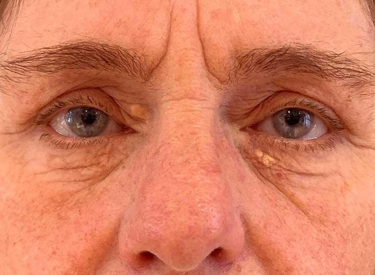 Operation xantelasma före efter bilder - efter