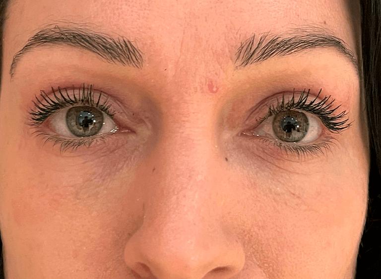 Operera övre och undre ögonlocksplastik före efter bilder - efter
