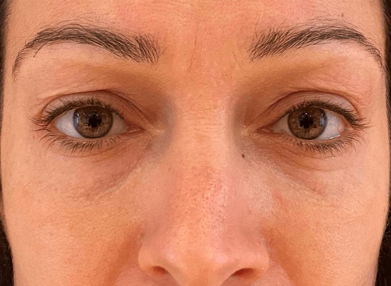 Operera övre och undre ögonlocksplastik före efter bilder - före
