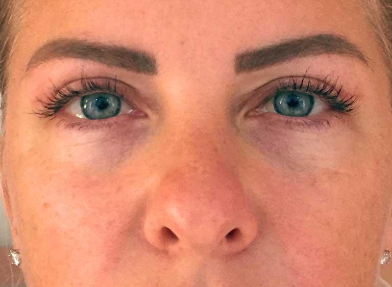 Operera övre-ögonlock före efter bilder - efter