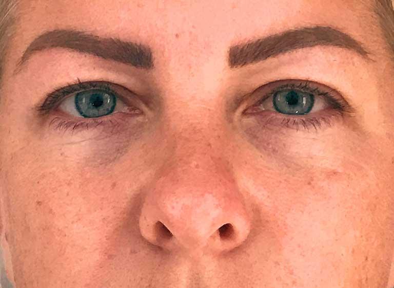 Operera övre-ögonlock före efter bilder -före
