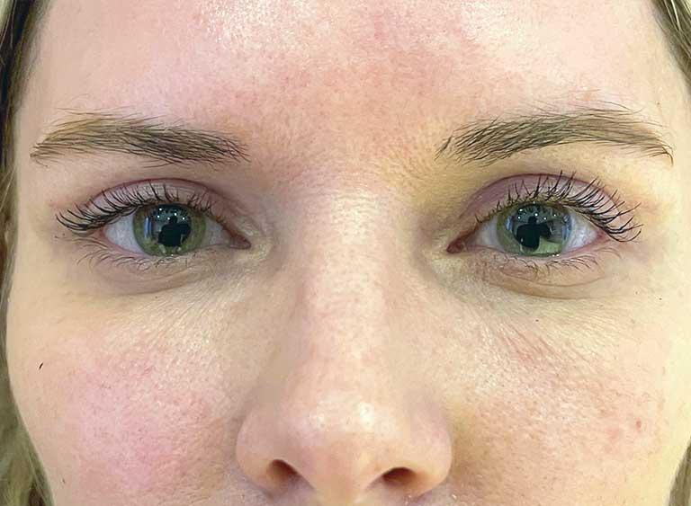 Övre Ögonlocksoperation före efter bilder - efter
