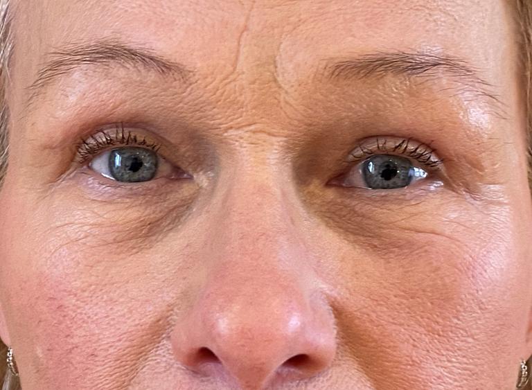 efter - övre nedre ögonlock