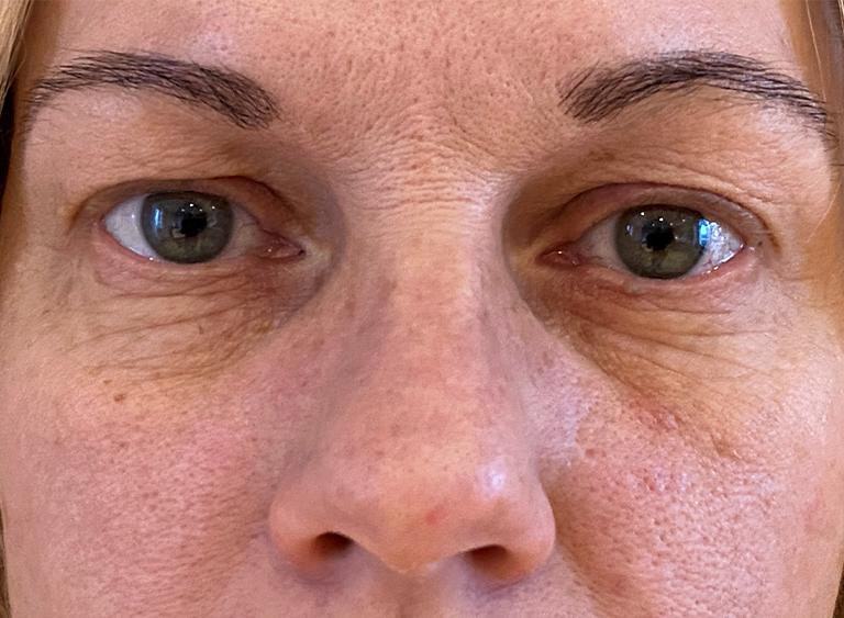 före - övre nedre ögonlock