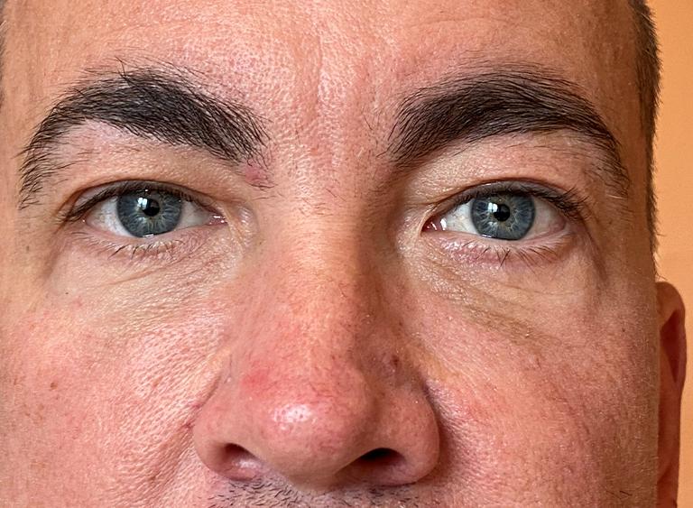 Operera nedre ögonlock man efter