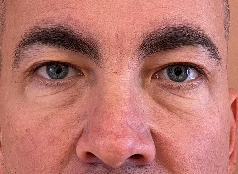 Operera nedre ögonlock man före