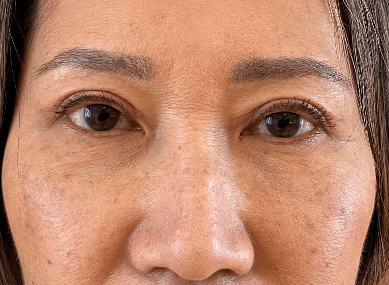 ögonlocksplastik asiatiska ögon före efter bilder - efter