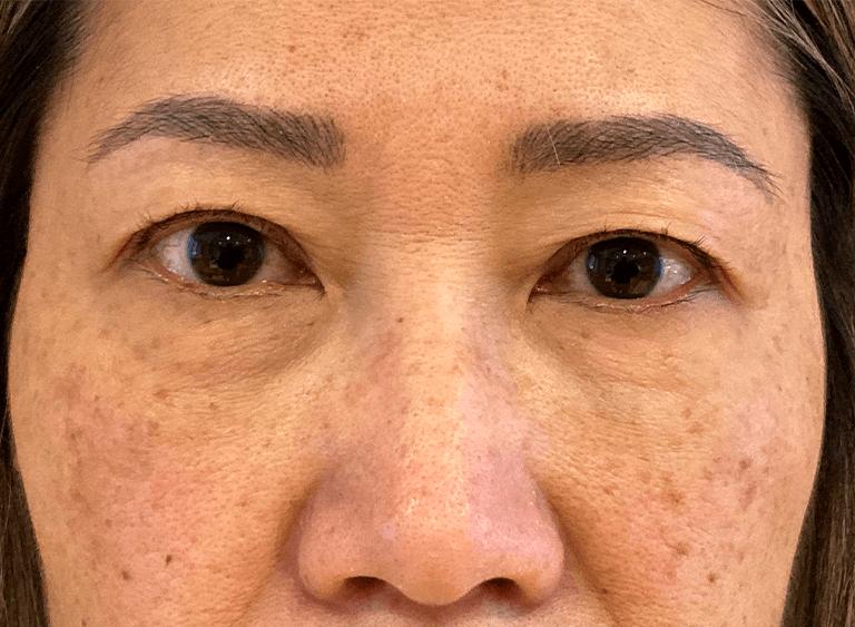 ögonlocksplastik asiatiska ögon före efter bilder - före