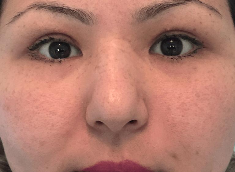 operation asiatiska ögon före efter bilder - efter