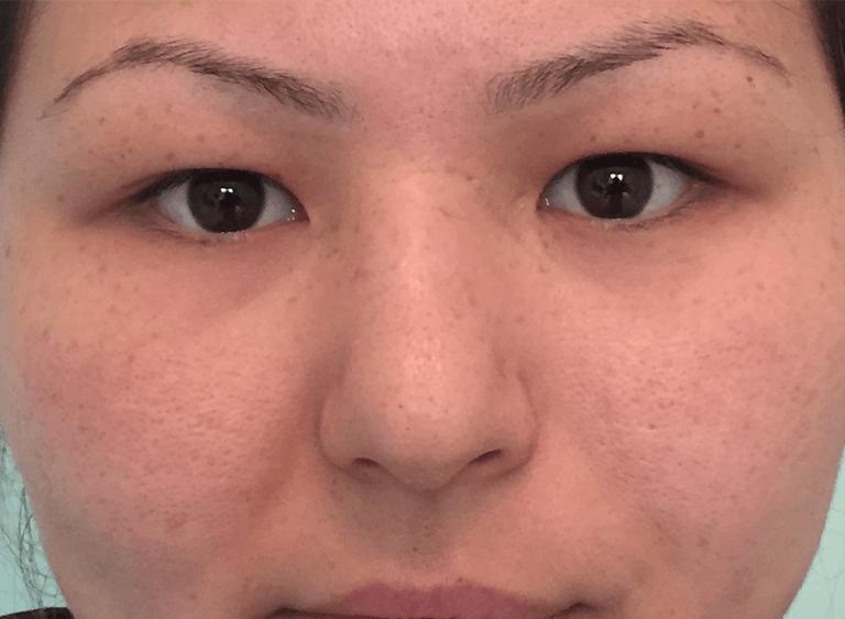 operation asiatiska ögon före efter bilder - före