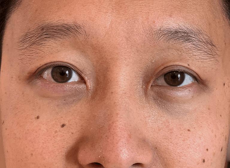 operera asiatiska ögon före efter bilder - efter