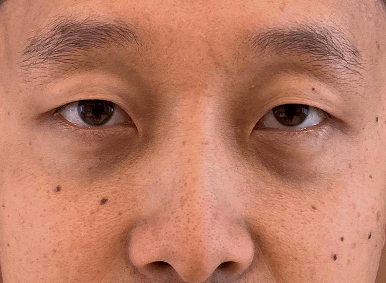 operera asiatiska ögon före efter bilder - före
