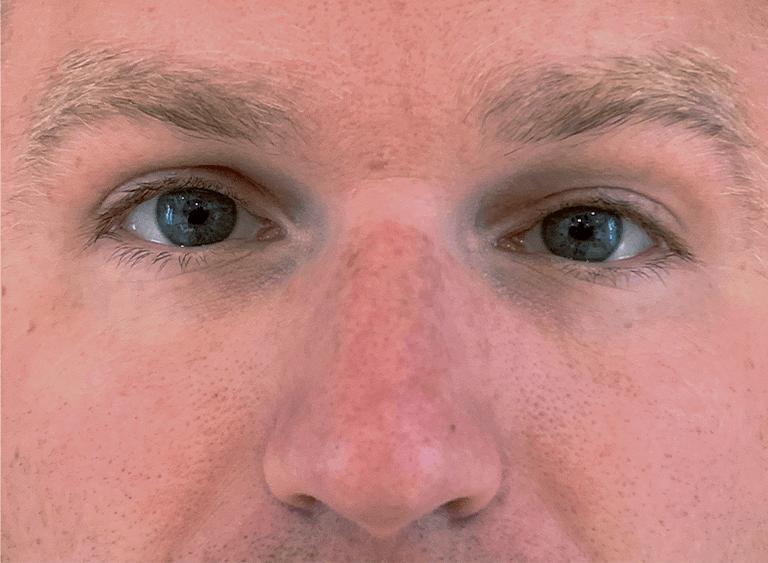 Ptos operation på ett öga före efter bilder - efter