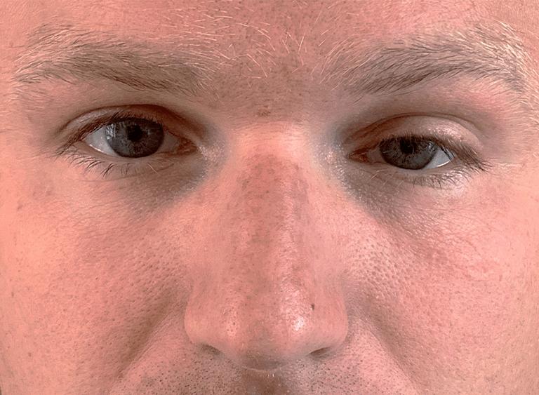 Ptos operation på ett öga före efter bilder - före